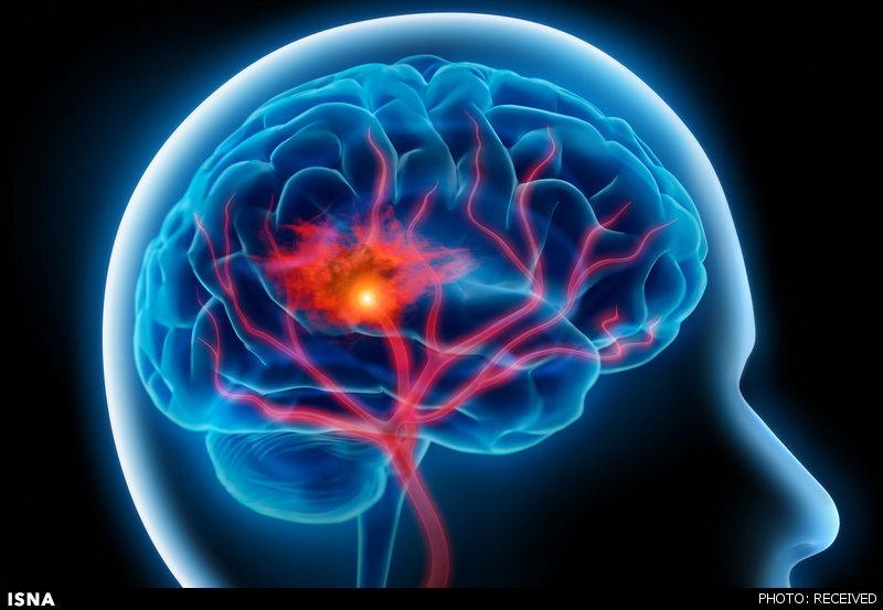 کلسترول,سکته مغزی,بیماری
